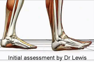 Biomechanics Clinic - conditions Plantar Fasciitis, Custom foot orthoses, custom orthopedic footwear, or orthopedic shoe modifications